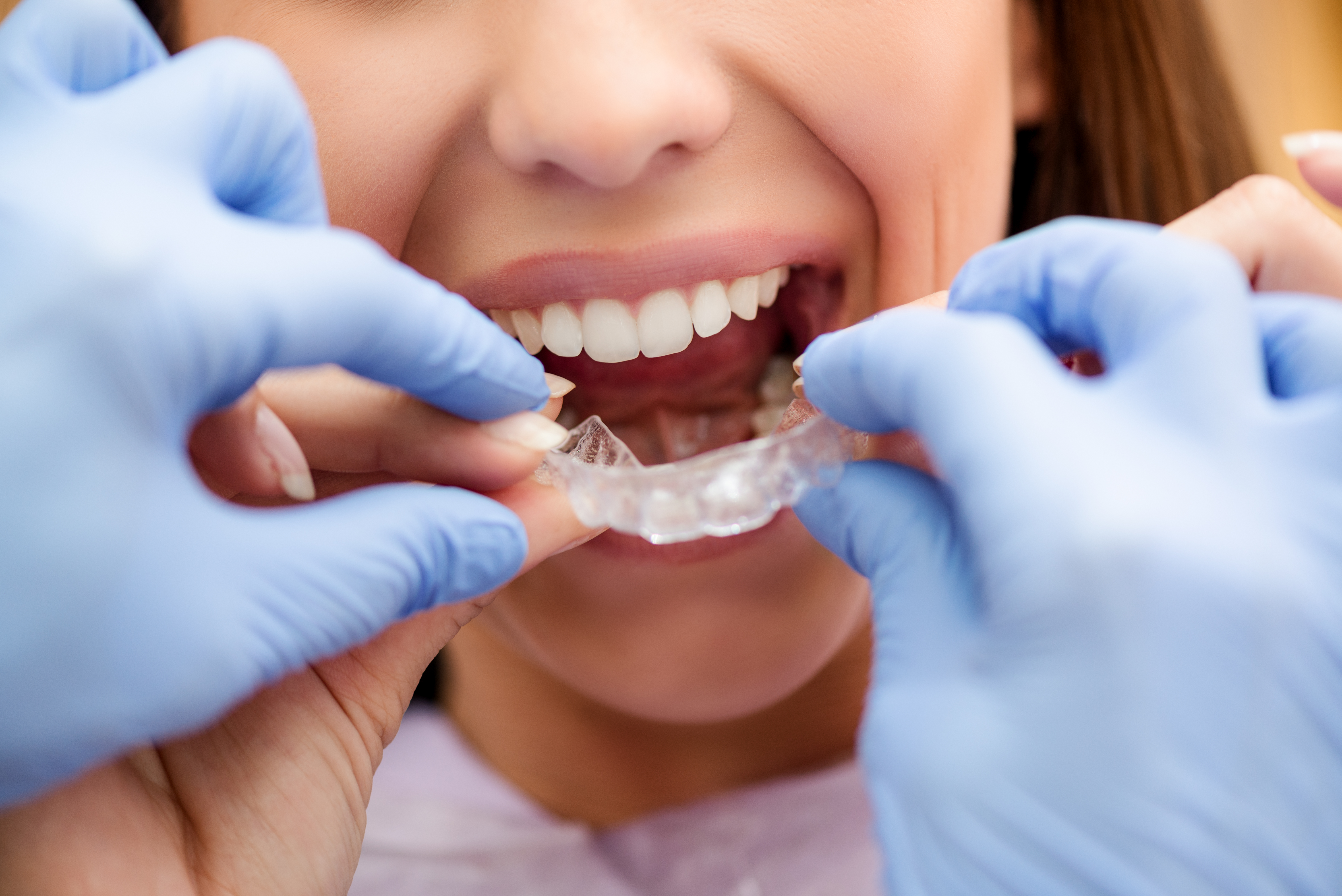 orthodontie invisible, gouttiere-orthodontie-chirurgien-dentiste-centre-soin-dentaire-marseille-13009